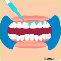 歯茎を保護します