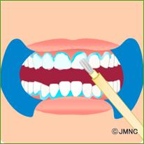 歯の表面にホワイトニング薬剤を塗布します。